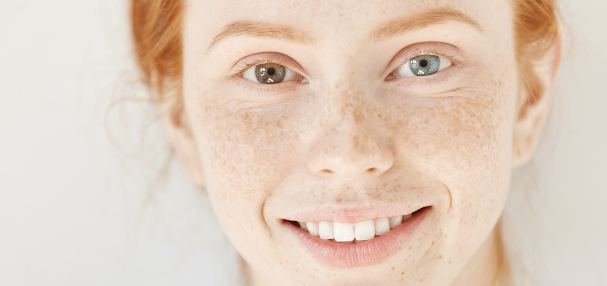 Young freckled woman smiling with two different colored eyes